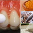 Home Remedies to Get Rid of Toothache Instantly
