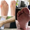 Home Remedies to Treat Gout Naturally