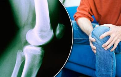Tips to Help You Prevent Osteoarthritis