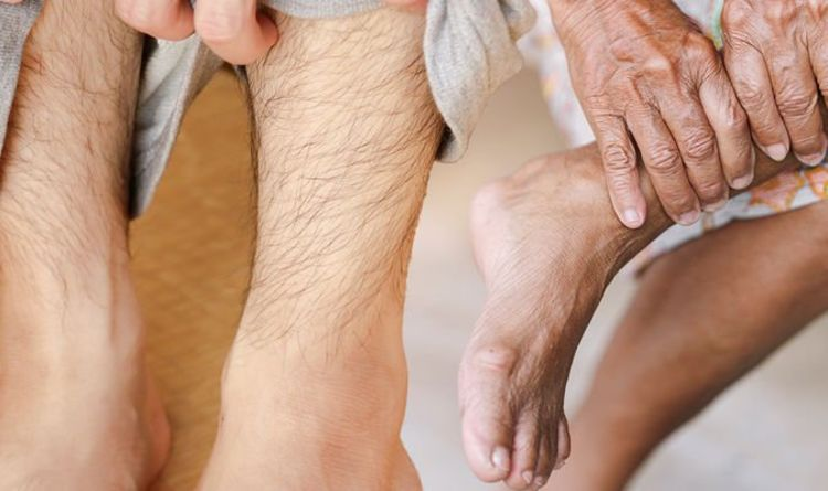 High cholesterol: Five signs in your legs you must address 'at the earliest opportunity'