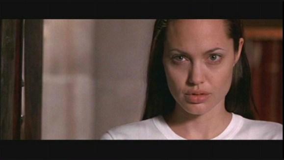 TR Angelina Jolie 086 - Cantopexia, la Cirugía que Rasga los Ojos