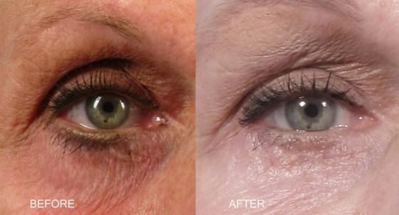 canthopexy 1030x556 - Cantopexia, la Cirugía que Rasga los Ojos