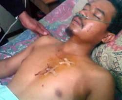 Wakil Ketua DPD PKS Tulangbawang Slamet Riyadi yang ditembak dalam aksi perampokan Rabu (2/1) dini hari di kediamannya di Kampung Bujukagung, Kecamatan Banjarmargo, Kabupaten Tulangbawang. (pks.or.id)