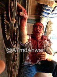 Dr. Mo'men Salam terluka parah di depan pintu rumah sakit