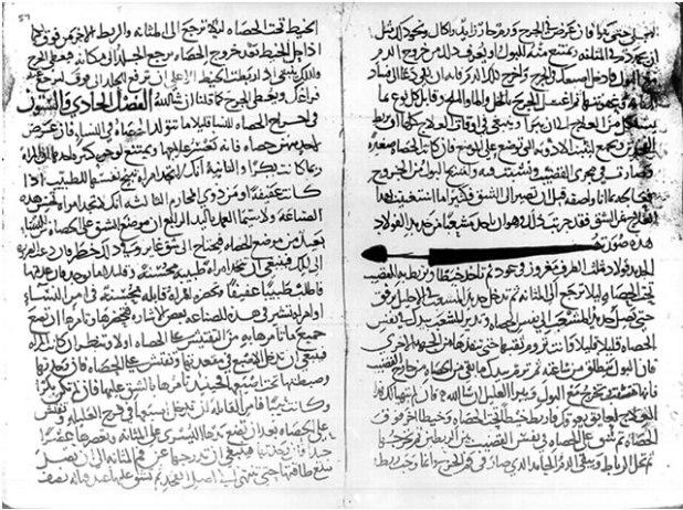 Kitab Al-Zahrawi yang berjudul Al-Tastif Liman Ajiz'an Al-Ta'lif, berisi tentang metode surgery (Pengobatan penyakit dengan cara operasi manual atau dengan instrumen) (artikelkomplit.com)