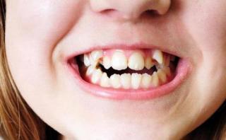 Gigi yang tumbuh tidak normal (ilustrasi).  (tribunnews.com)