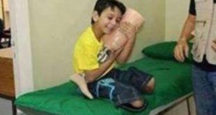 Anak Palestina sedang memeluk kaki palsu yang baru diterimanya.  (@AliSiamPress)