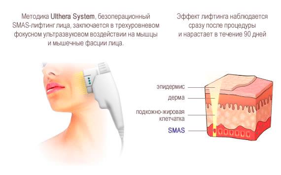 ulthera-4