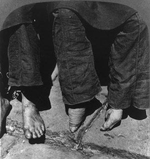 Unbound and bound feet in 1902, 10 years before the ban