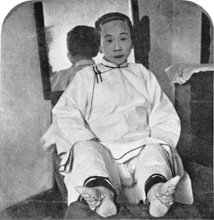Woman with uncovered bound feet, 1911