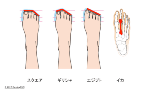 イカ型の足