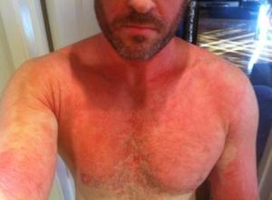 Red Skin Syndrome body flare