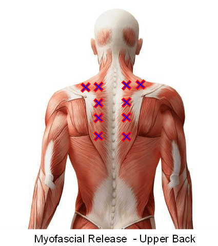 Myofascial Release - Upper Back