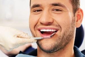 Teeth Cleaning Rigby