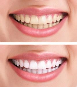 Teeth Whitening Rigby