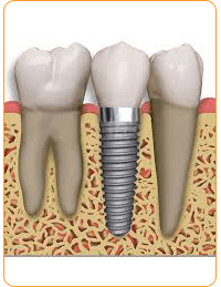 Implant Dentistry Dentist in Vasant Vihar New Delhi