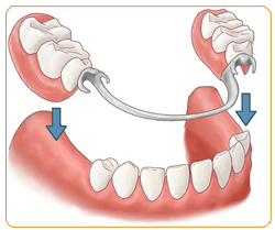 partial-dentures-small