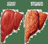 fatty-liver_s