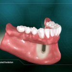 A general overview of the function of a Periodontist