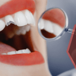 How to Get Broken Teeth Fixed as Quickly as Possible
