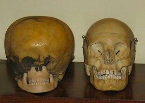 'Starchild Skull' cf. normal human skull