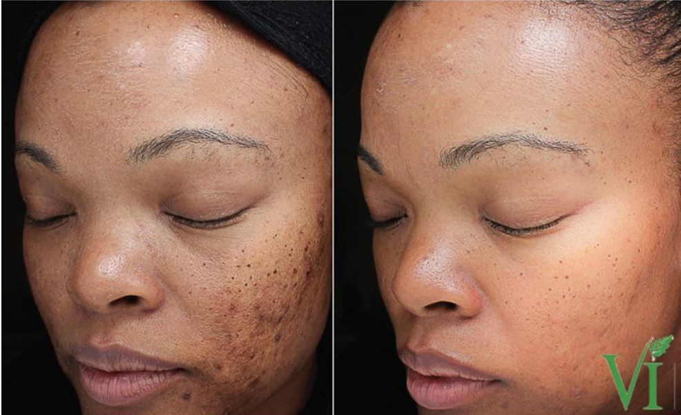 Care Products Skin Revision
