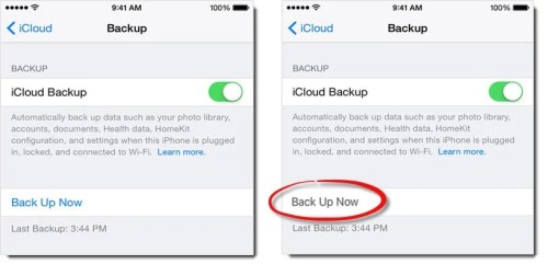 """What to Do If iCloud """"Back Up Now"""" Option Is Greyed out in iPhone?"""