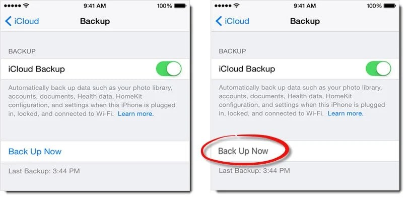 "What to Do If iCloud ""Back Up Now"" Option Is Greyed out in iPhone?"