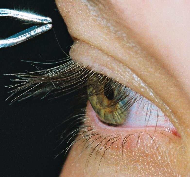 Jalenes Beautiful Heterochromic Eyes