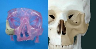3D-printed face implant gets FDA approval – CNET