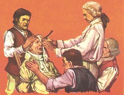 Image result for catract surgery old image