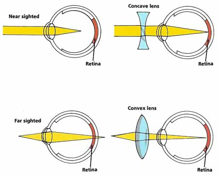 Image result for concave lens eye