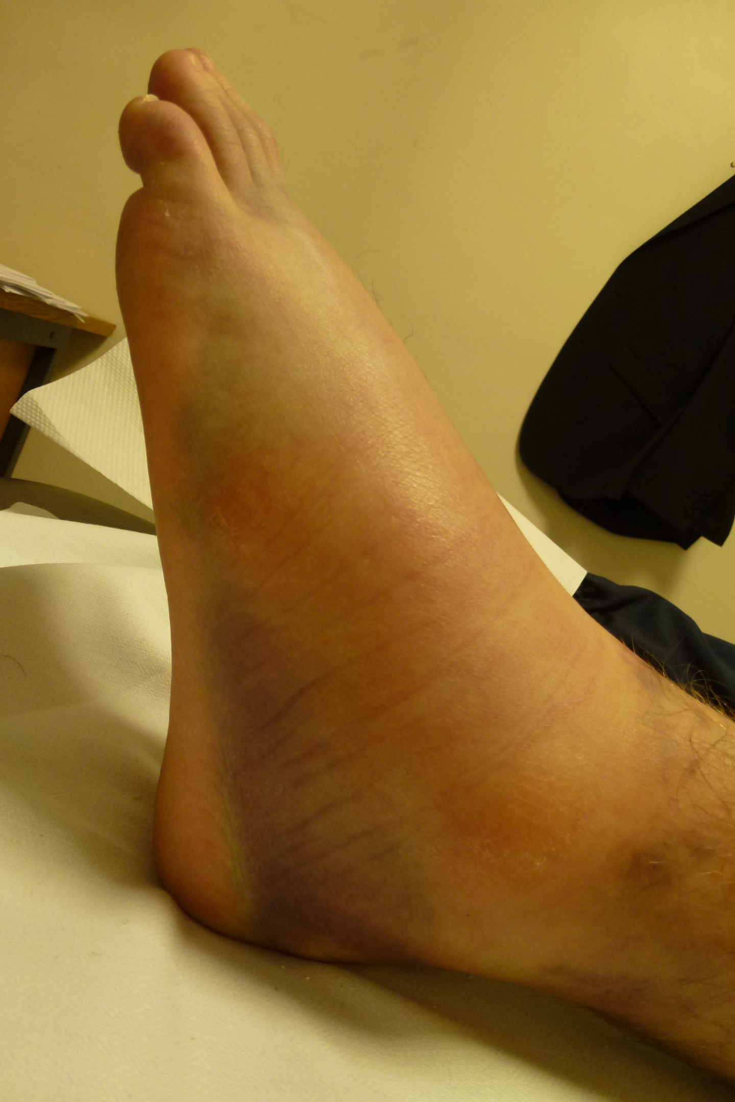Ankle Sprain Causes