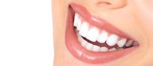 Dental Veneers Dentist Toronto Ontario