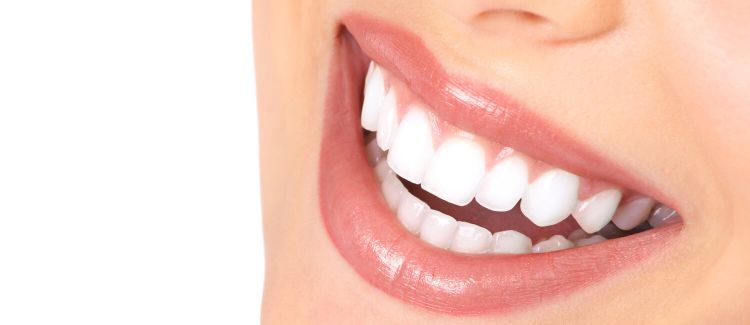 Are You A Candidate For Porcelain Veneers?