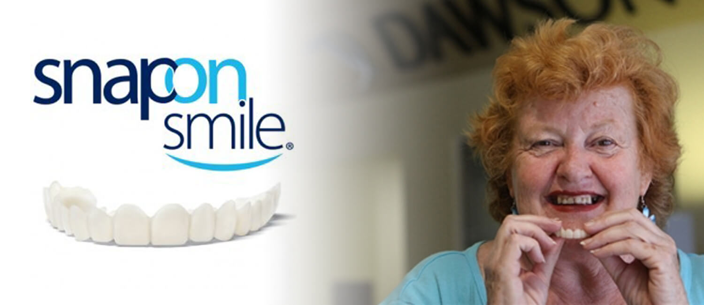 Snap-On Teeth Treatment