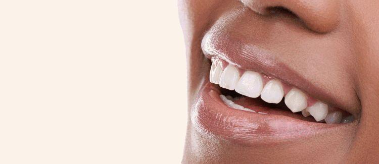 Dental Smile Makeovers