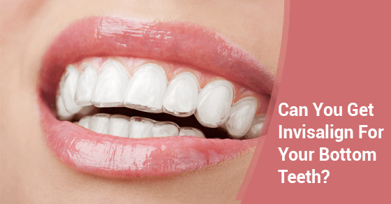 Can You Get Invisalign For Your Bottom Teeth?