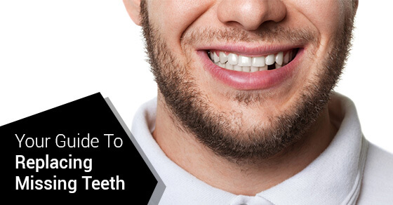 Your Guide To Replacing Missing Teeth