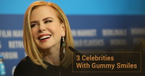 3 Celebrities With Gummy Smiles