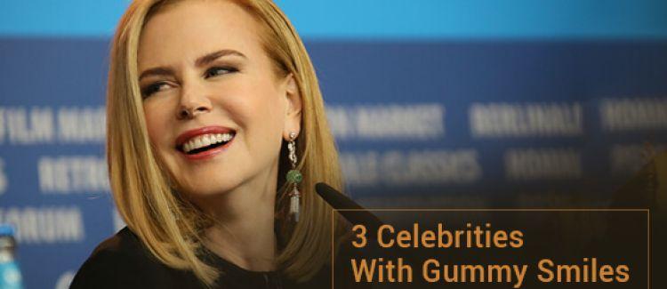 3 Celebrities With Gummy Smiles