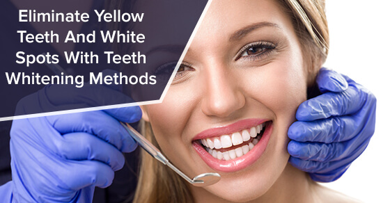 Eliminate Yellow Teeth And White Spots With Teeth Whitening Methods