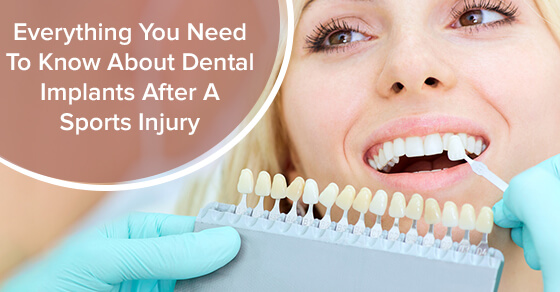 Everything You Need To Know About Dental Implants After A Sports Injury