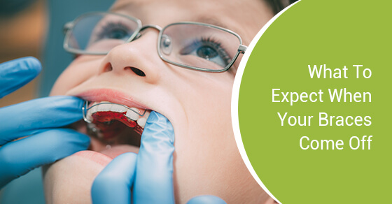 What To Expect When Your Braces Come Off