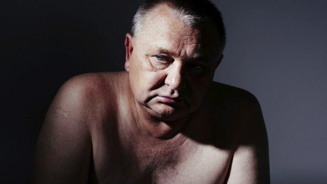 O que é e para que serve a próstata, principal foco de câncer masculino