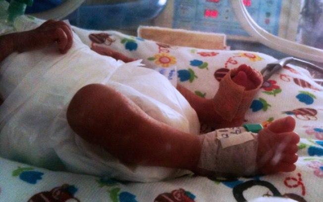 Morrem os três outros bebês dos quíntuplos que nasceram em Goiânia