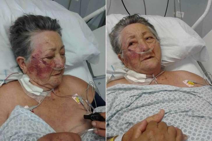 Idosa é agredida em UTI de hospital público
