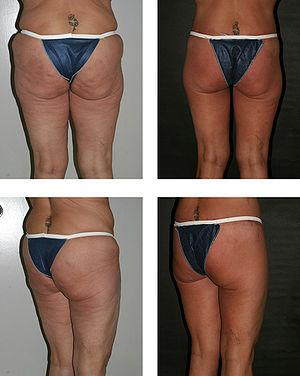 "mutya buena bottom implants: ""I just wanted it a bit perkier"""