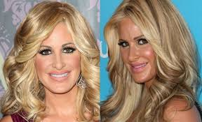 Kim Zolciak plastic surgery Before And After