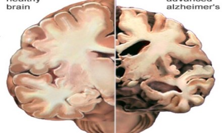 alzheimer's contagious:  Does Study Suggest alzheimer's can be contagious?